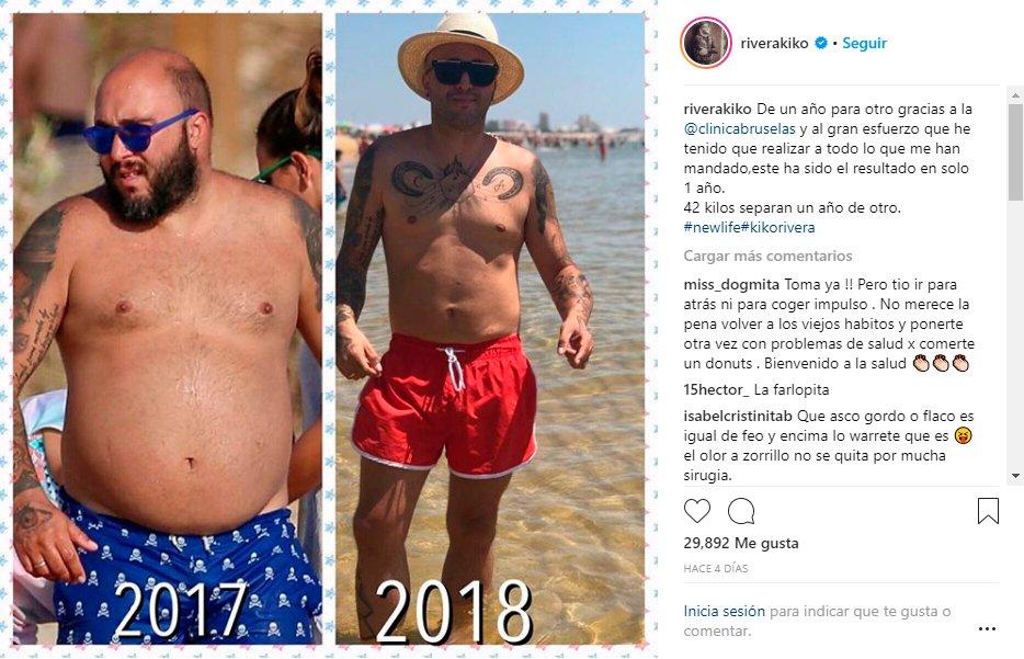 Kiko Rivera antes y después