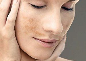 como se cura el vitiligo