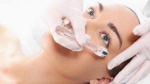 DermaRoller facial