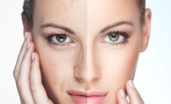 quitar manchas faciales